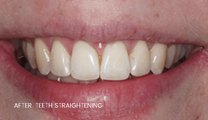 widnes teeth straightening results