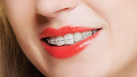clear braces in widnes results