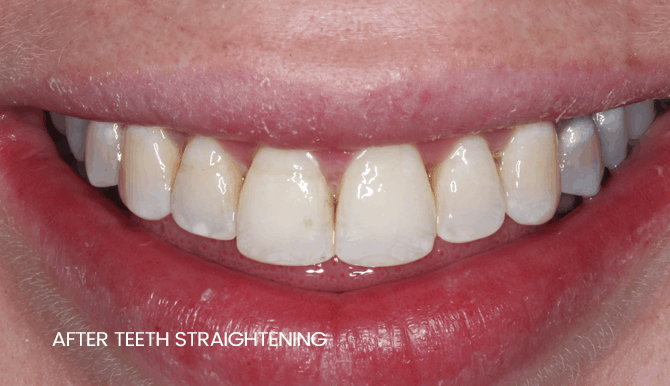 widnes smile makeover after