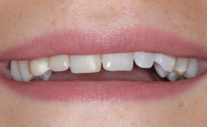 smile transformation widnes dentist