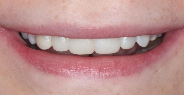 composite bonding widnes dentist